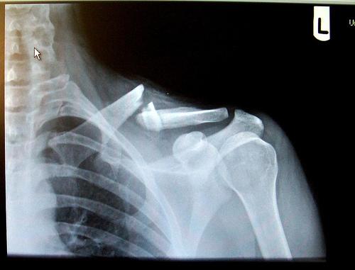20090323 brokenclav Lance Armstrongs Broken CollarboneX Ray Broken Collar Bone